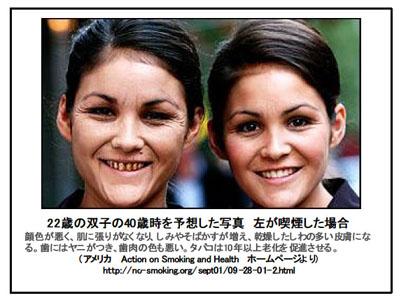 喫煙者双子40歳時